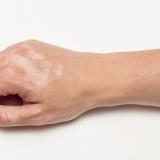 kézfej